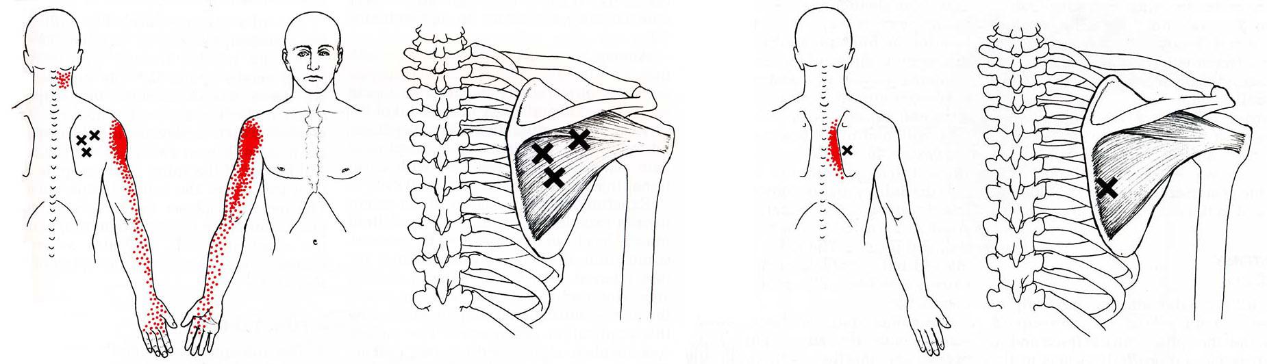 шейный остеохондроз боль в плечевом суставе лечение